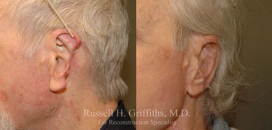 Before and After ear reconstruction surgery for cancer defect