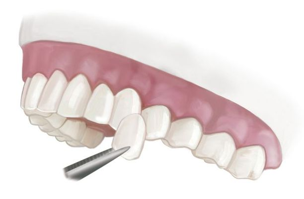 Illustration of how a porcelain veneer attaches to a tooth