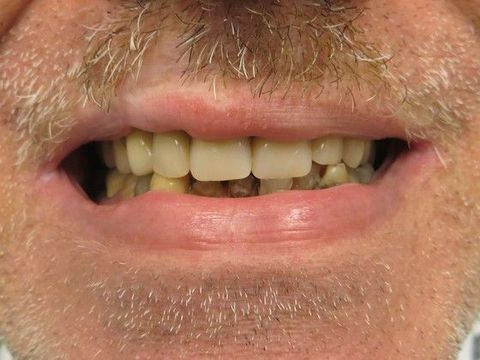 After partial denture has been placed