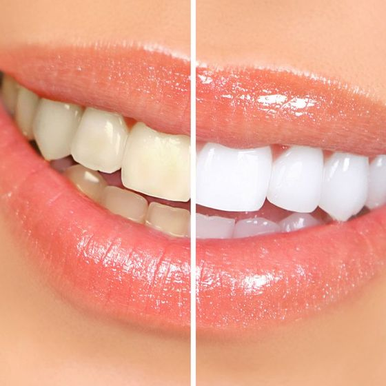 Before and after images of a teeth whitening patient