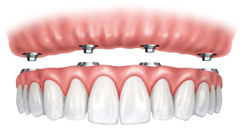 A graphic demonstrating how implant-supported dentures are fitted onto a patient's implants.