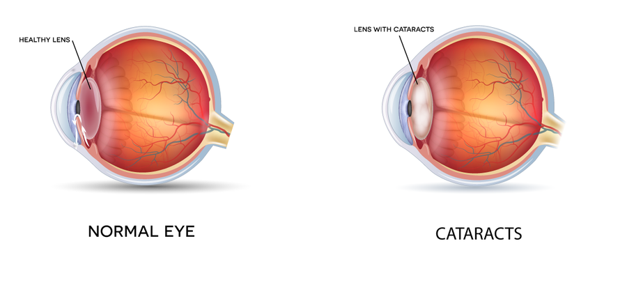 Healthy eye and eye with cataracts