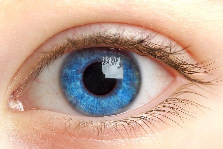 Woman's eye after having LAHayeSIK laser eye surgery