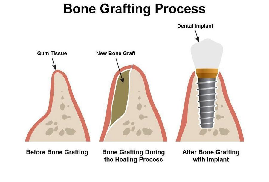 Illustration of bone grafting