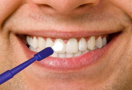 image of fluoride treatment