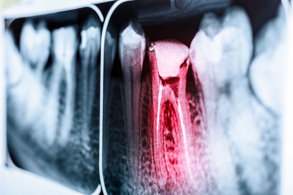 An x-ray image of an infected tooth in need of root canal therapy.