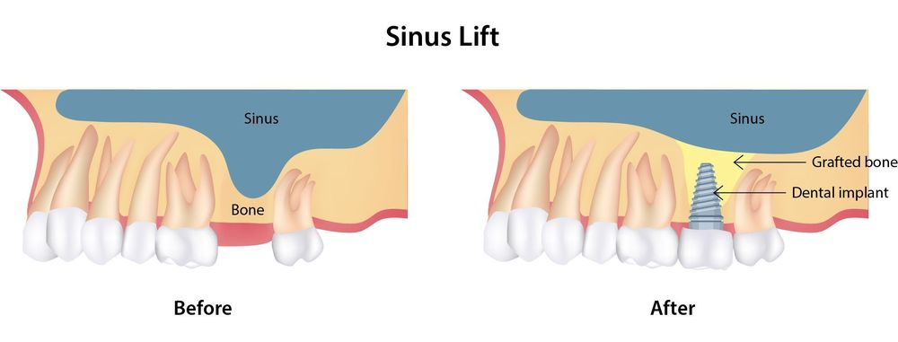 A before and after illustration of how a sinus lift can add bone to the upper molar area
