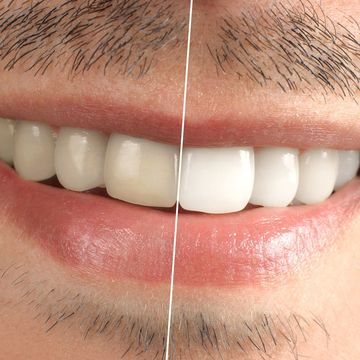 Before and after image of a teeth whitening patient.