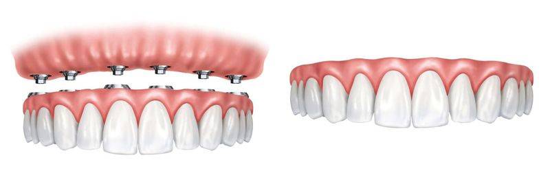 A side-by-side comparison of implant-supported dentures and traditional dentures.