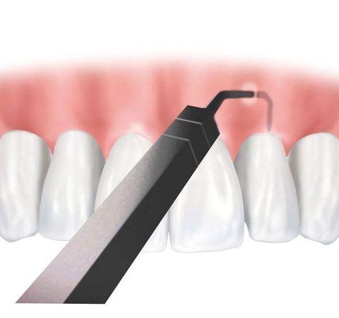 Image of Chao Pinhole Technique