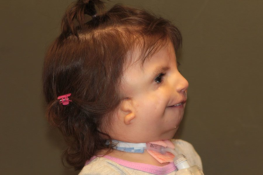 Side view of a child with Treacher Collin's Syndrome and bilateral microtia atresia Dr. Russell H. Griffiths MD