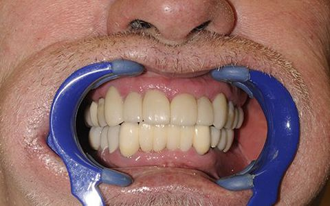 Personalized porcelain veneers created a cohesive smile.