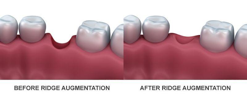ridge augmentation