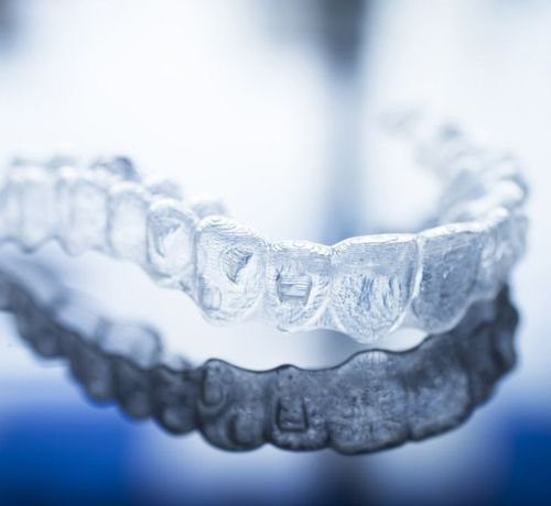 image of orthodontic treatments