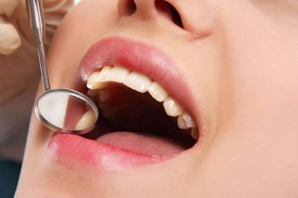 Close up of woman undergoing dental checkup