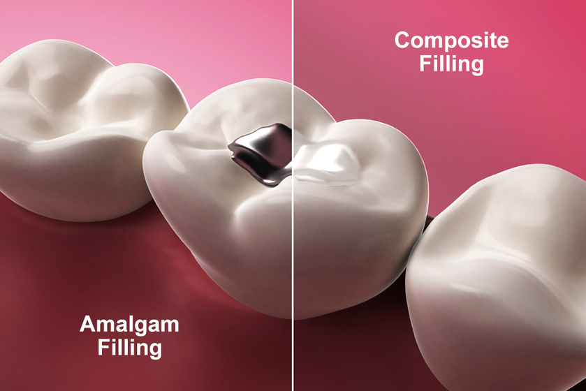 Illustration of types of dental fillings