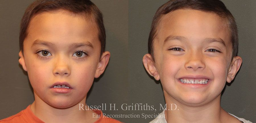Before and After: One-stage microtia ear reconstruction surgery with rib graft and canalplasty