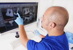 Photo of a man looking at dental x-rays