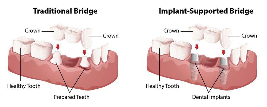 illustration of traditional bridge versus implant-supported bridge