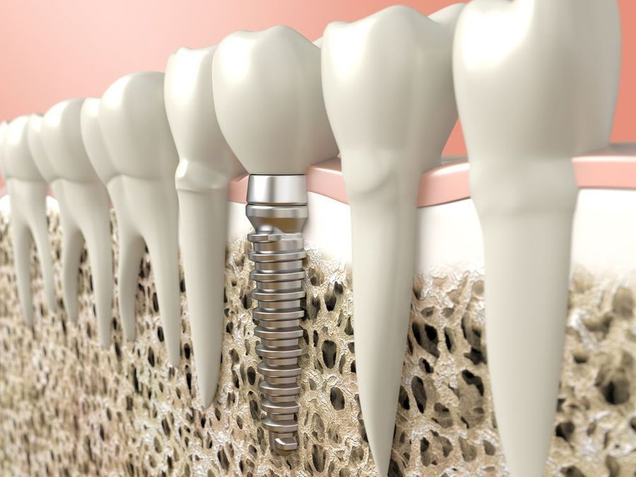 Graphic of a dental implant, abutment, and dental crown