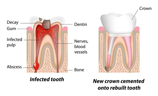 Illustration of an infected tooth after root canal therapy.