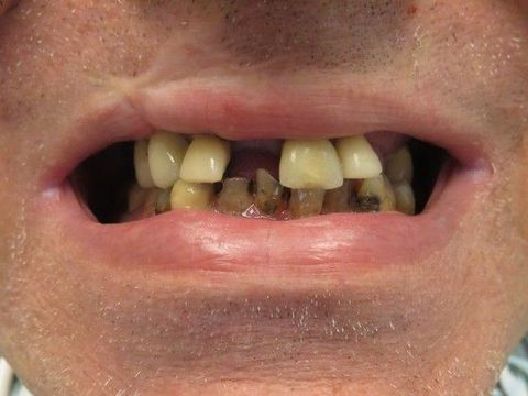 Dentures - Germantown, TN - Jackson, TN - Trenton - Elite Dental Care