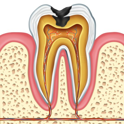 Artist conception of an infected tooth