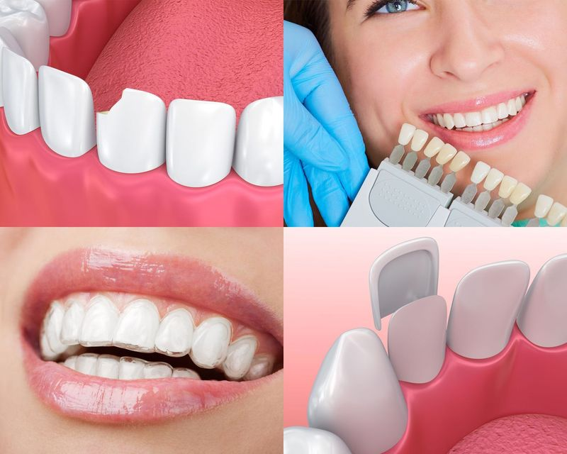 Series of images showing dental bonding, tooth shade selection, Invisalign aligners, and porcelain veneers