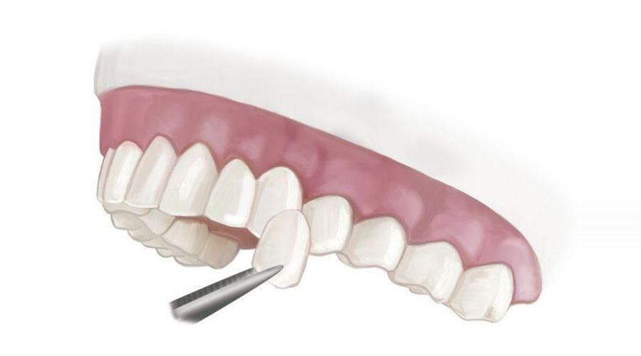 illustration of a porcelain veneer on a dental mold