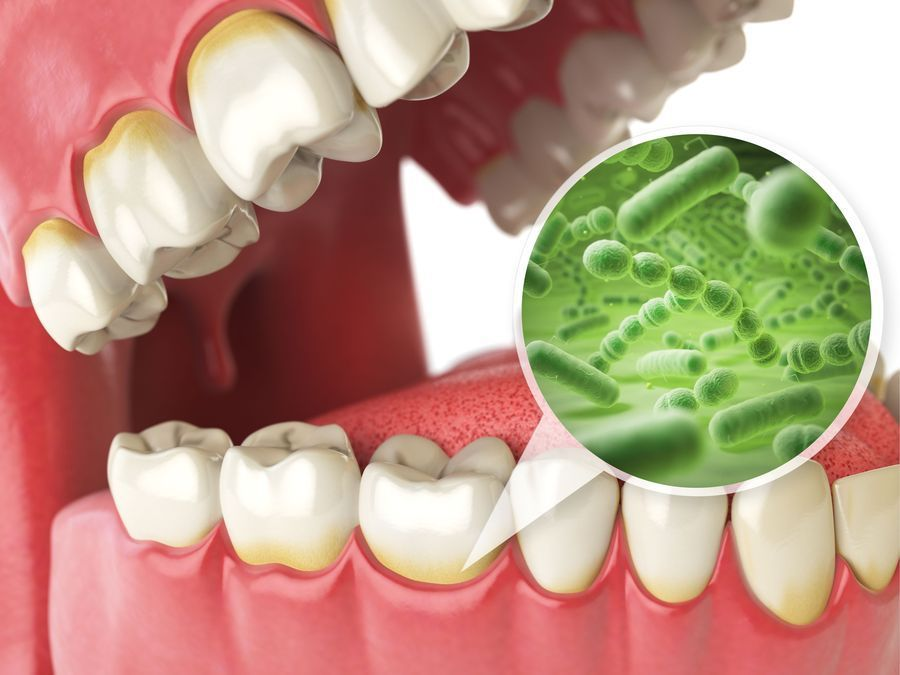 Illustration of bacterial built up around teeth and gums