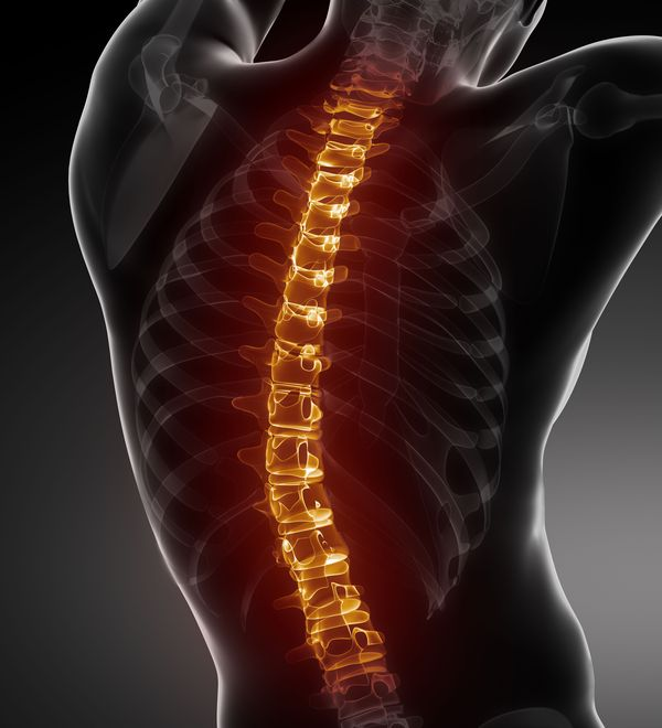 An image with a spinal cord injury highlighted in red