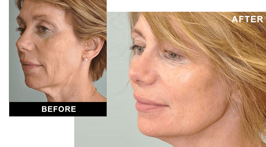 Before and after full facelift surgery