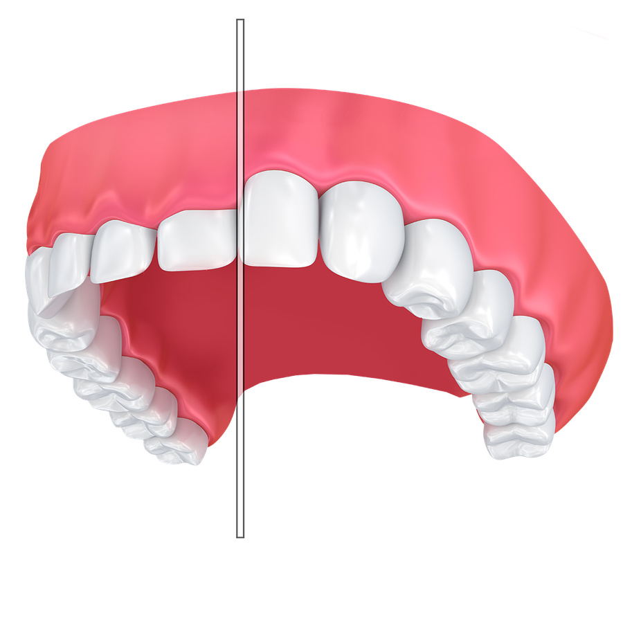 Illustration comparing gum line before and after gum contouring