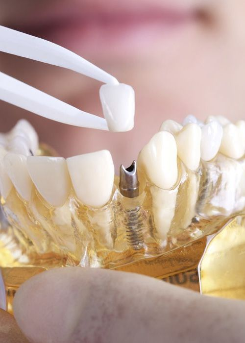 Photo of a dental restoration over a dental implant
