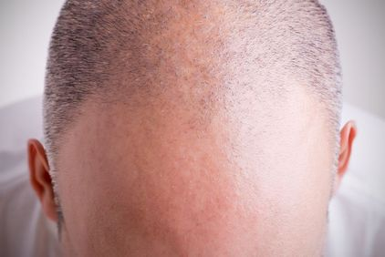Balding man's scalp with short hair