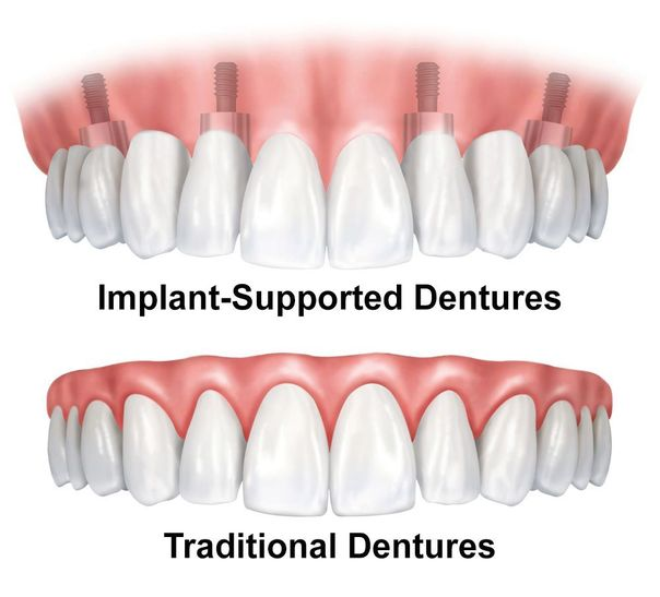 image of traditional dentures and implant-supported dentures