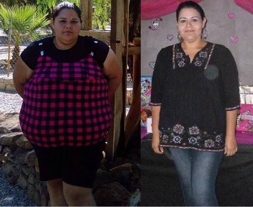 Before and after bariatric surgery