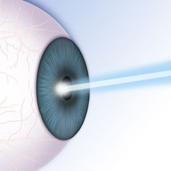 Illustration of an eye undergoing LASIK