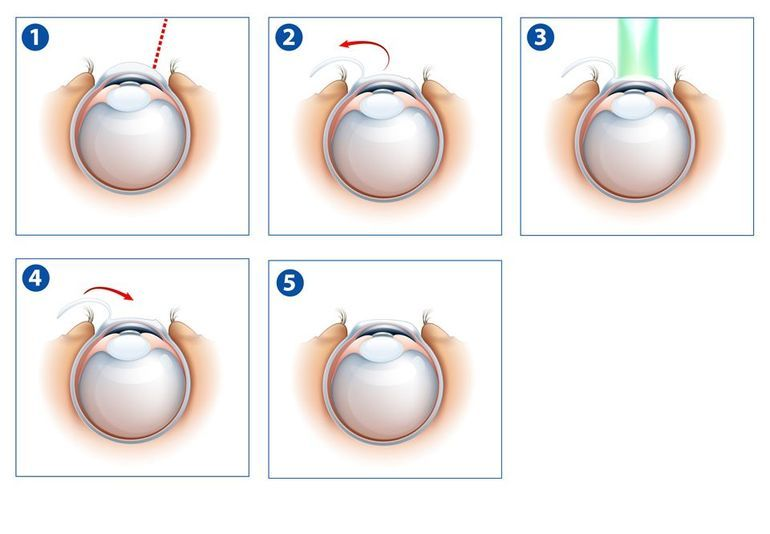 Diagram of LASIK procedure