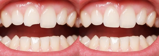 A chipped tooth before and after bonding