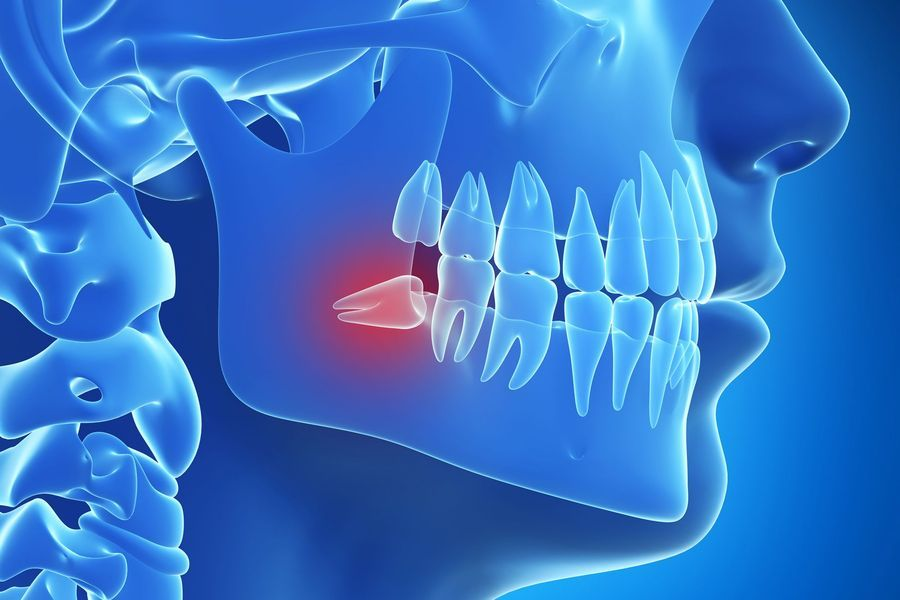 Illustration of jaw in blue with wisdom tooth in red