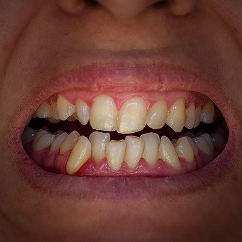 Shifted Teeth