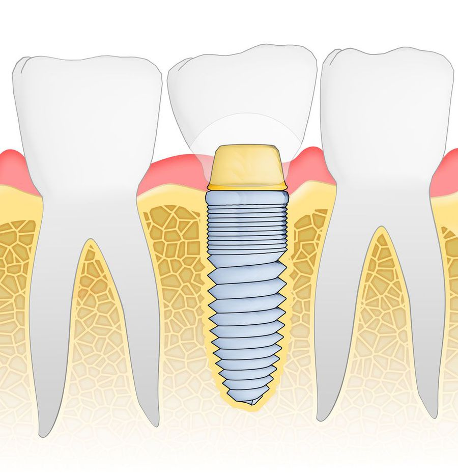 Illustration of a dental implant.