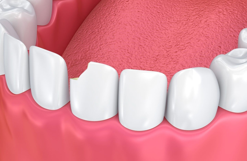 A chipped tooth before treatment.