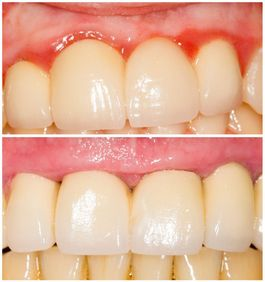 Before and after picture of gum grafting