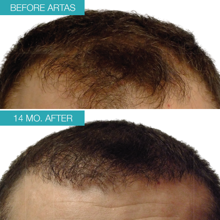 Patient 1's head before and after treatment with ARTAS