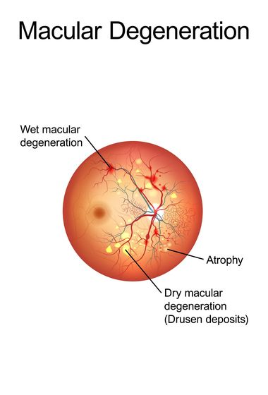 Illustration of wet and dry macular degeneration.