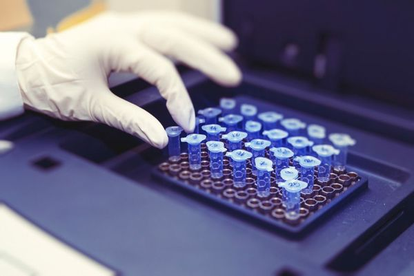 Samples in laboratory undergoing testing