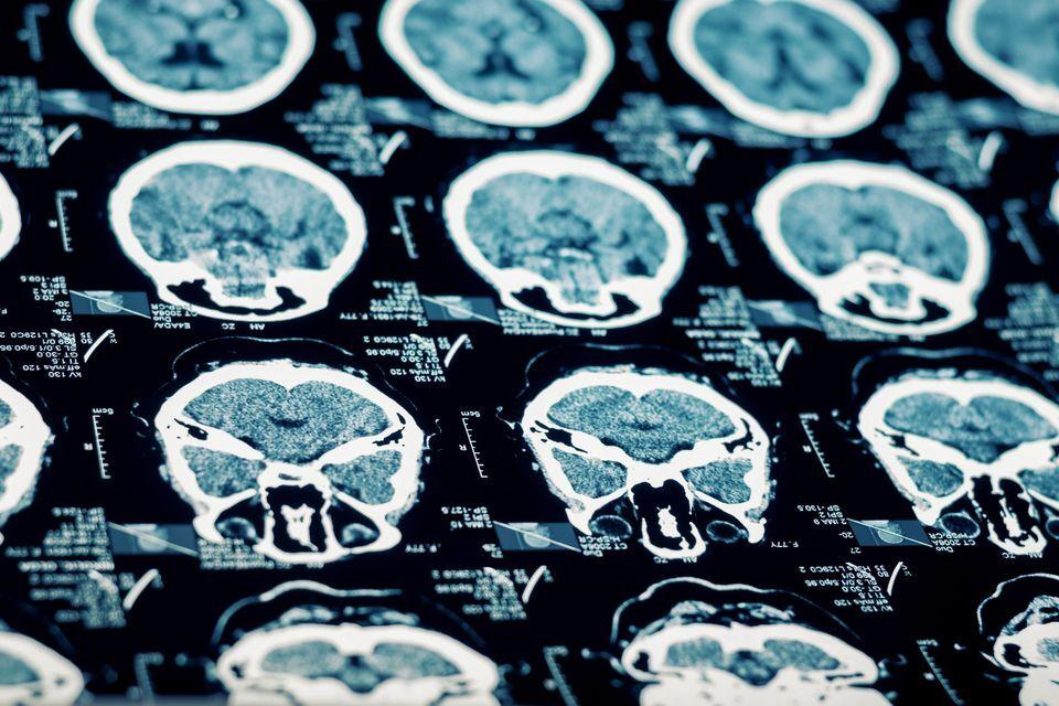 X-rays of a brain injury.