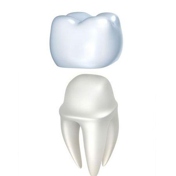 illustration of dental crowns